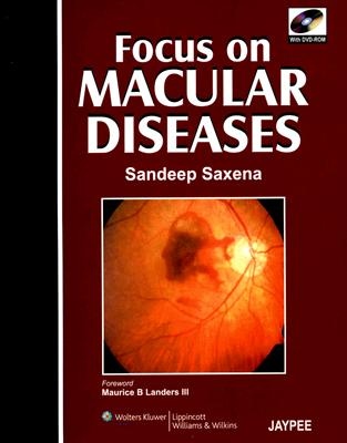 Focus on Macular Diseases: Co-Published by Jaypee Brothers and Lippincott Williams & Wilkins