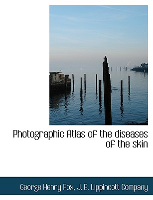 Photographic Atlas of the diseases of the skin, Fox, George Henry