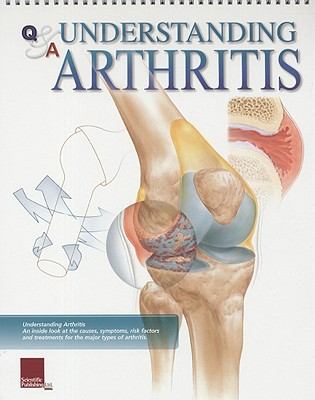 Understanding Arthritis Flip Chart (Flip Charts), SCIENTIFIC PUBLISHING LTD.