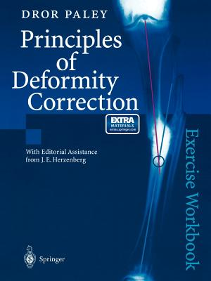 Principles of Deformity Correction, Paley, Dror
